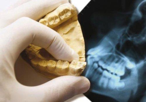 Riconoscimento odontotecnici quale professione sanitaria: istanza inoltrata