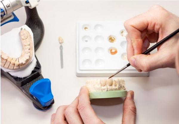 Rafforzare il ruolo dell'odontotecnico come fabbricante